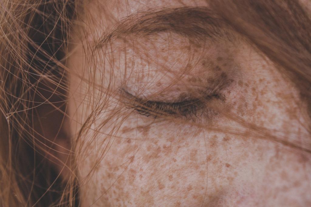 Imagen de una chica, muy pecosa, pelirroja, con los ojos cerrados. La fotografía solo capta el ojo derecho. Parece que está pensando o soñando.